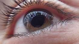 Retina-Display